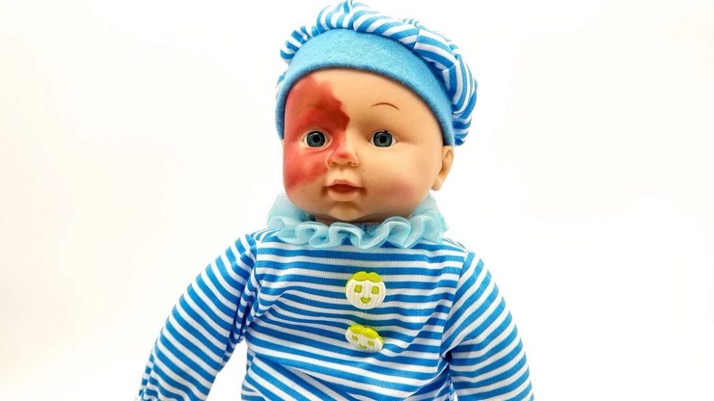 Boneco bebê que tem uma grande mancha vermelha que toma metade do seu rosto.